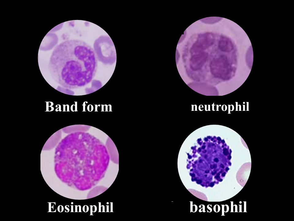basophil Eosinophil Band form neutrophil