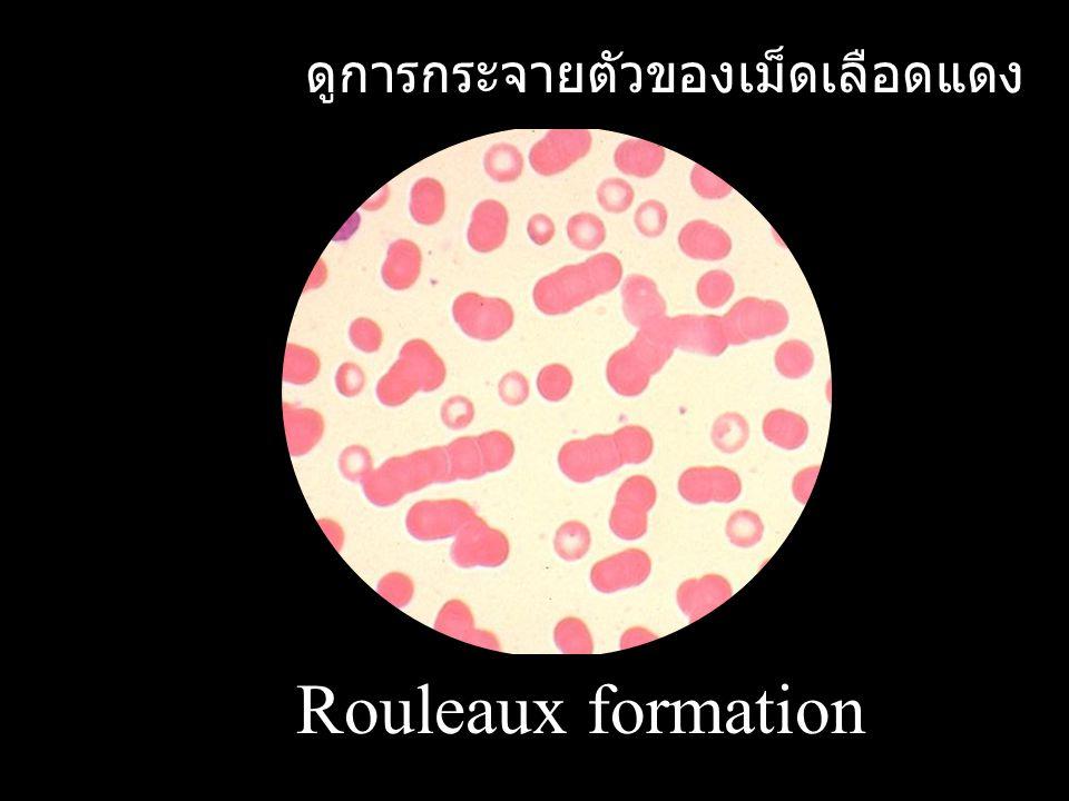 Rouleaux formation ดูการกระจายตัวของเม็ดเลือดแดง