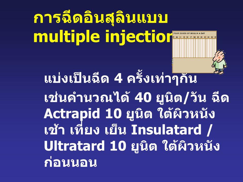 การฉีดอินสุลินแบบ multiple injection แบ่งเป็นฉีด 4 ครั้งเท่าๆกัน เช่นคำนวณได้ 40 ยูนิต / วัน ฉีด Actrapid 10 ยูนิต ใต้ผิวหนัง เช้า เที่ยง เย็น Insulatard / Ultratard 10 ยูนิต ใต้ผิวหนัง ก่อนนอน