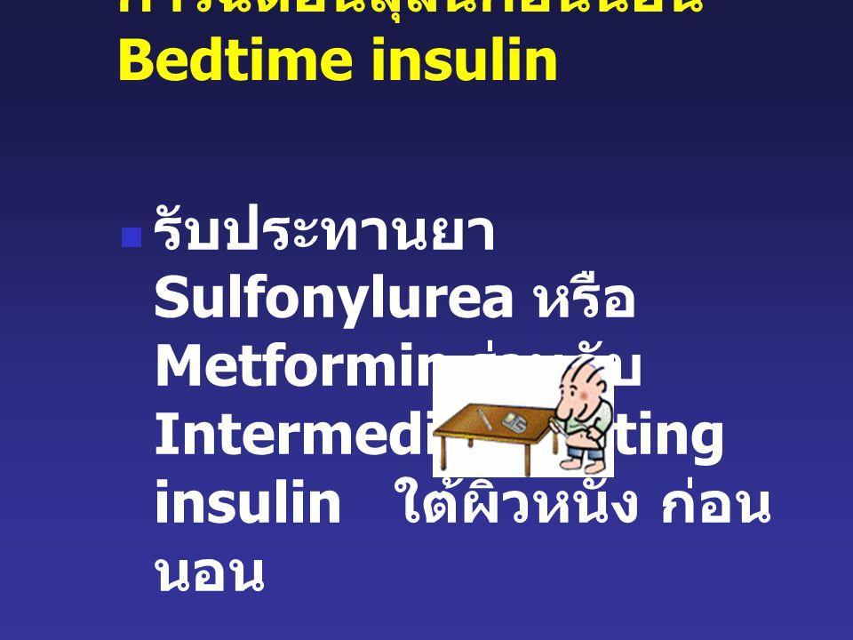 การฉีดอินสุลินก่อนนอน Bedtime insulin รับประทานยา Sulfonylurea หรือ Metformin ร่วมกับ Intermediate acting insulin ใต้ผิวหนัง ก่อน นอน