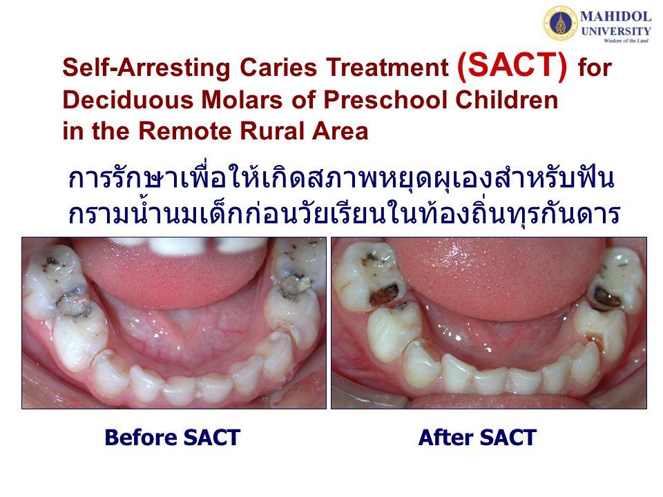 Self-Arresting Caries Treatment (SACT) for Deciduous Molars of Preschool Children in the Remote Rural Area การรักษาเพื่อให้เกิดสภาพหยุดผุเองสำหรับฟัน กรามน้ำนมเด็กก่อนวัยเรียนในท้องถิ่นทุรกันดาร Before SACT After SACT