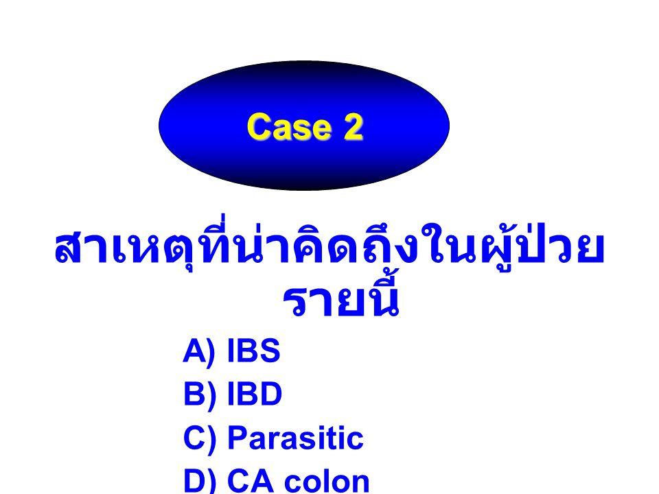 สาเหตุที่น่าคิดถึงในผู้ป่วย รายนี้ A) IBS B) IBD C) Parasitic D) CA colon Case 2