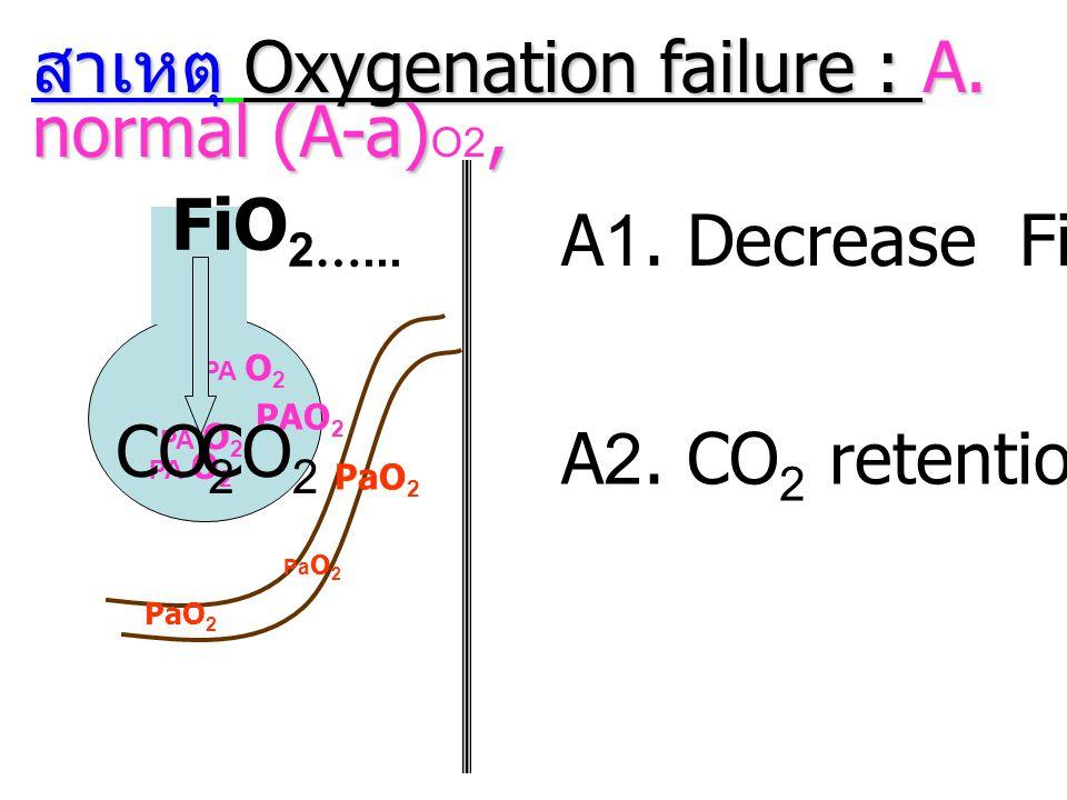 สาเหตุ Oxygenation failure : A. normal (A-a), สาเหตุ Oxygenation failure : A. normal (A-a) O2, Pa O 2 PA O 2 A1. Decrease FiO 2 FiO 2 …... PaO 2 A2. C