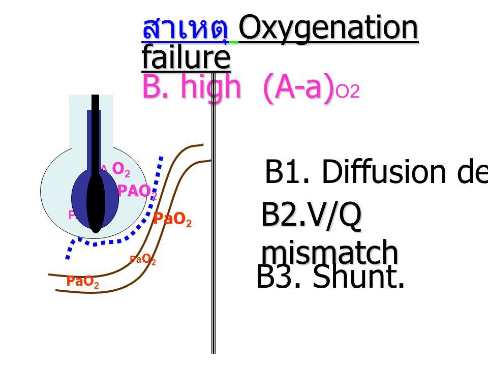 สาเหตุ Oxygenation failure B. high (A-a) B. high (A-a) O2 B1. Diffusion defect Pa O 2 PA O 2 B2.V/Q mismatch B3. Shunt. PaO 2