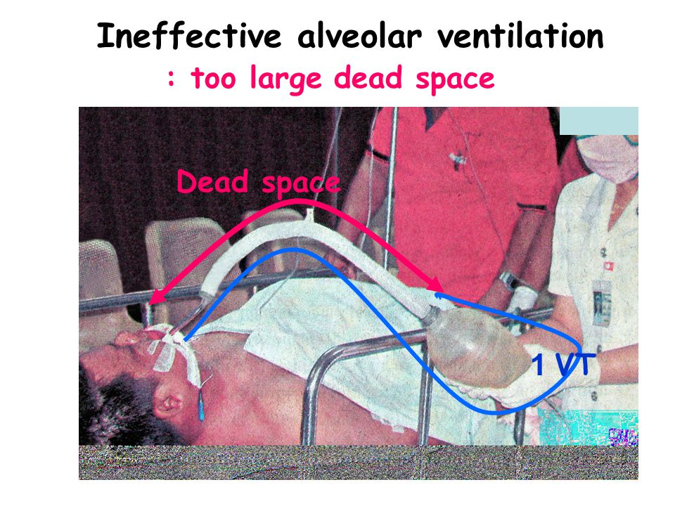 Ineffective alveolar ventilation : too large dead space 1 VT Dead space