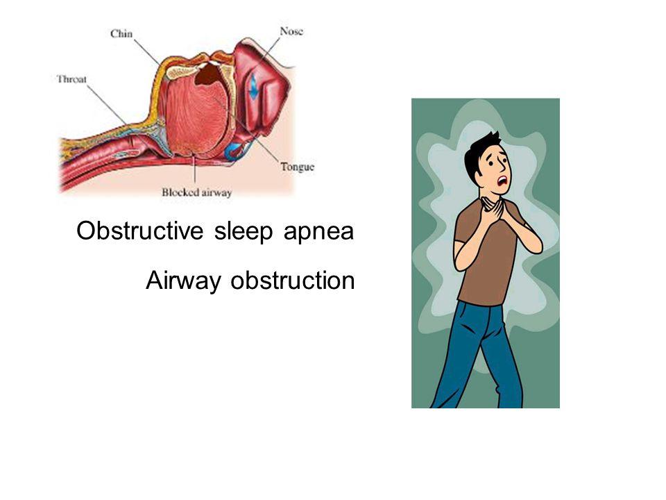 Airway obstruction Obstructive sleep apnea