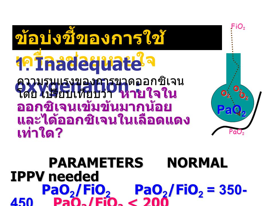 1. Inadequate oxygenation : PARAMETERS NORMAL IPPV needed PARAMETERS NORMAL IPPV needed PaO 2 /FiO 2 PaO 2 /FiO 2 = 350- 450 PaO 2 /FiO 2 < 200 PaO 2