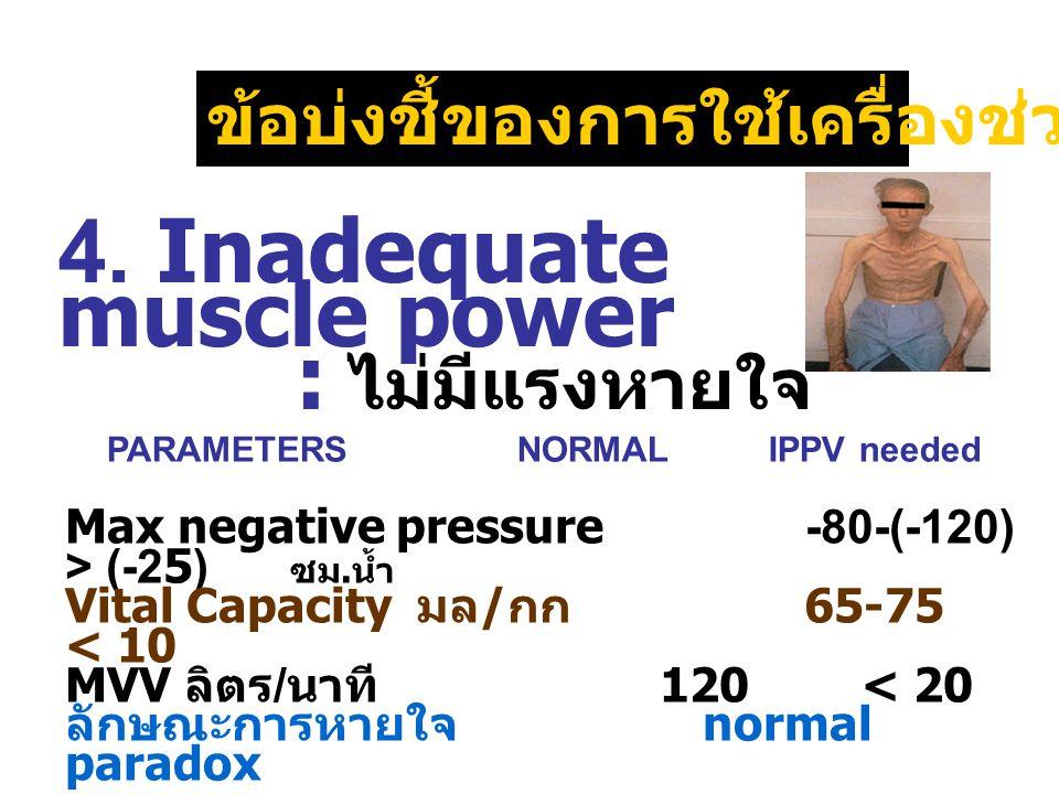 4. Inadequate muscle power : ไม่มีแรงหายใจ ข้อบ่งชี้ของการใช้เครื่องช่วยหายใจ Max negative pressure -80-(- 120) > (-25) ซม. น้ำ Vital Capacity มล / กก
