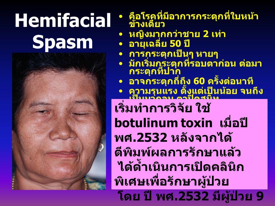 Hemifacial Spasm คือโรคที่มีอาการกระตุกที่ใบหน้า ข้างเดียว หญิงมากกว่าชาย 2 เท่า อายุเฉลี่ย 50 ปี การกระตุกเป็นๆ หายๆ มักเริ่มกระตุกที่รอบตาก่อน ต่อมา