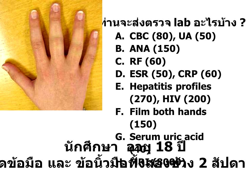 ท่านจะส่งตรวจ lab อะไรบ้าง ? A.CBC (80), UA (50) B.ANA (150) C.RF (60) D.ESR (50), CRP (60) E.Hepatitis profiles (270), HIV (200) F.Film both hands (1