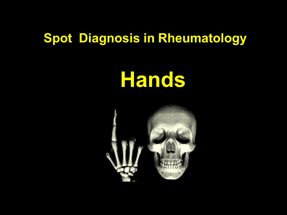 Hands Spot Diagnosis in Rheumatology