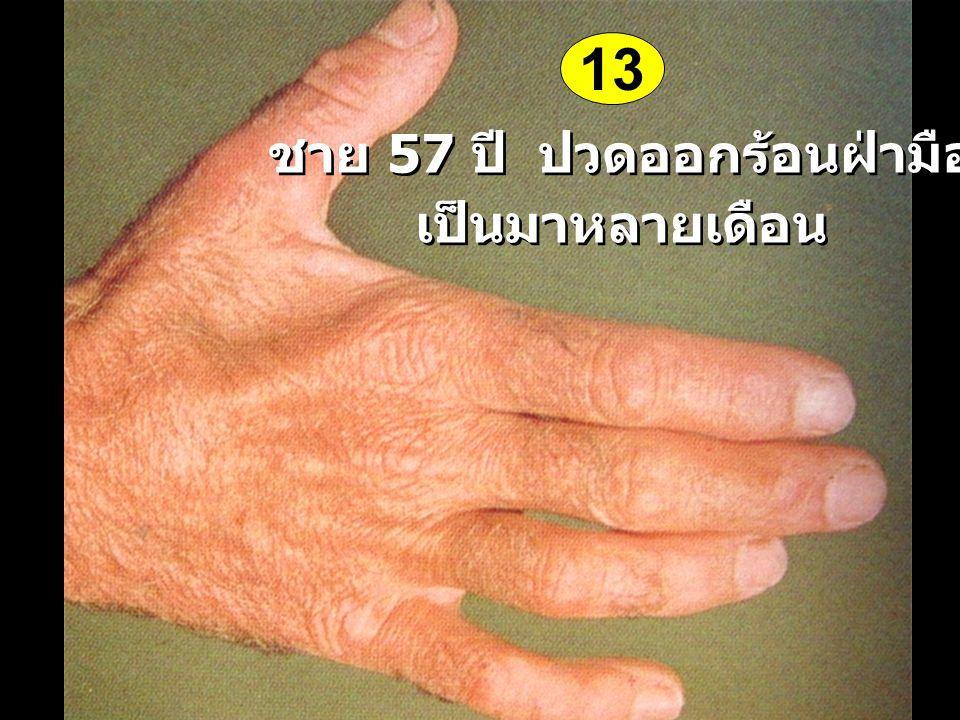 ชาย 57 ปี ปวดออกร้อนฝ่ามือ เป็นมาหลายเดือน ชาย 57 ปี ปวดออกร้อนฝ่ามือ เป็นมาหลายเดือน 13