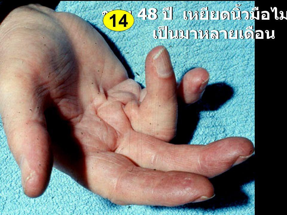 ชาย 48 ปี เหยียดนิ้วมือไม่ออก เป็นมาหลายเดือน ชาย 48 ปี เหยียดนิ้วมือไม่ออก เป็นมาหลายเดือน 14
