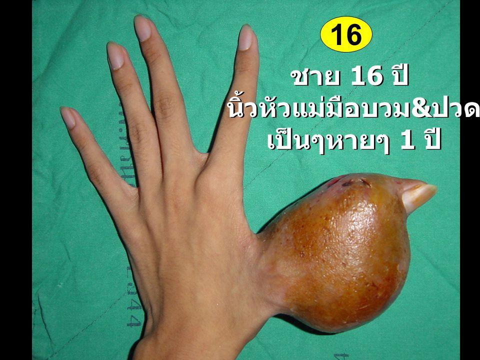 ชาย 16 ปี นิ้วหัวแม่มือบวม & ปวด เป็นๆหายๆ 1 ปี ชาย 16 ปี นิ้วหัวแม่มือบวม & ปวด เป็นๆหายๆ 1 ปี 16