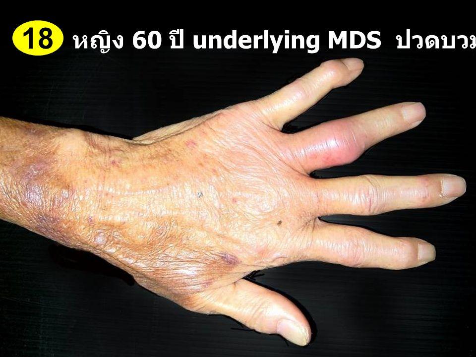 หญิง 60 ปี underlying MDS ปวดบวมข้อนิ้วมือ 1 สัปดาห์ 18