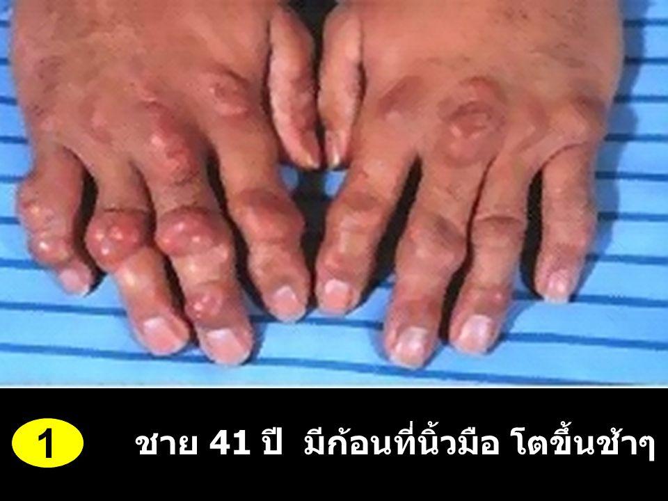 ชาย 41 ปี มีก้อนที่นิ้วมือ โตขึ้นช้าๆ 5-6 ปี 1