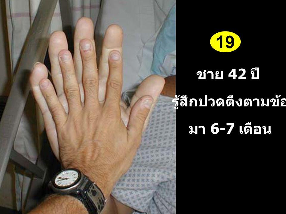 ชาย 42 ปี รู้สึกปวดตึงตามข้อ มา 6-7 เดือน 19