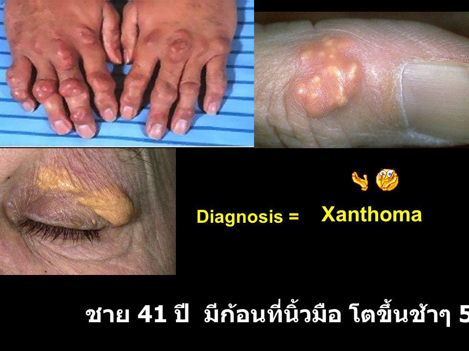 ชาย 41 ปี มีก้อนที่นิ้วมือ โตขึ้นช้าๆ 5-6 ปี Xanthoma Diagnosis =
