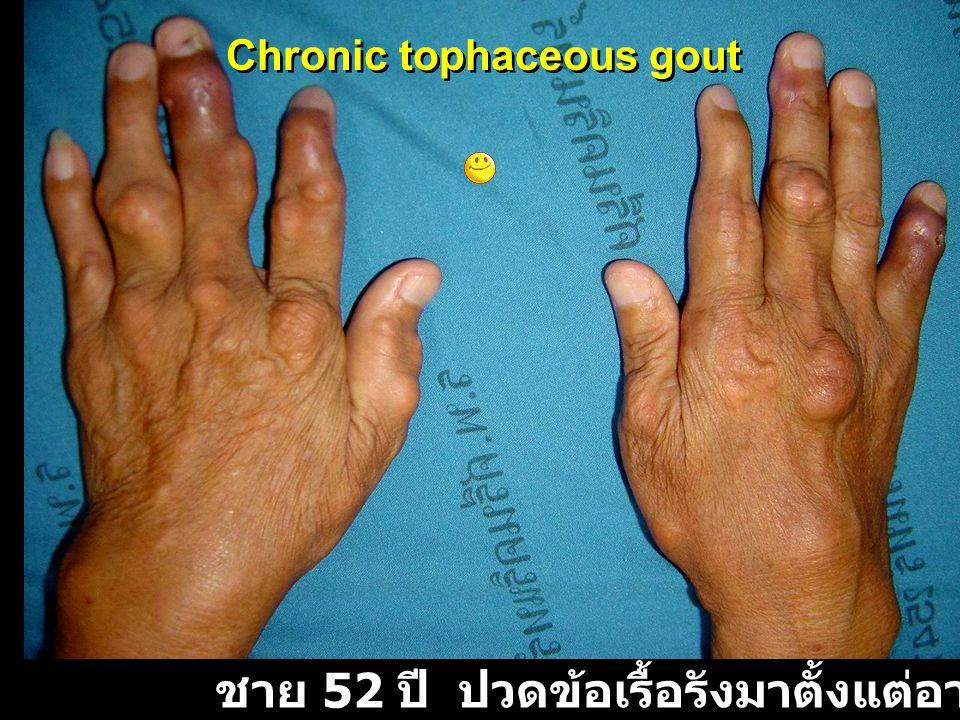ชาย 52 ปี ปวดข้อเรื้อรังมาตั้งแต่อายุ 34 ปี Chronic tophaceous gout