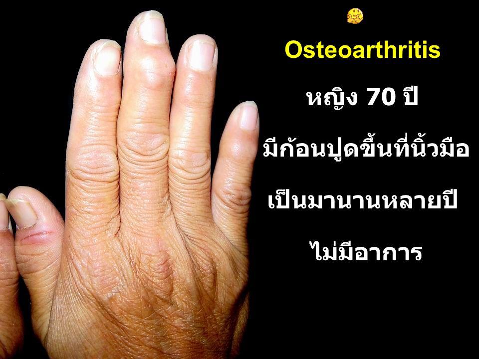 หญิง 70 ปี มีก้อนปูดขึ้นที่นิ้วมือ เป็นมานานหลายปี ไม่มีอาการ Osteoarthritis