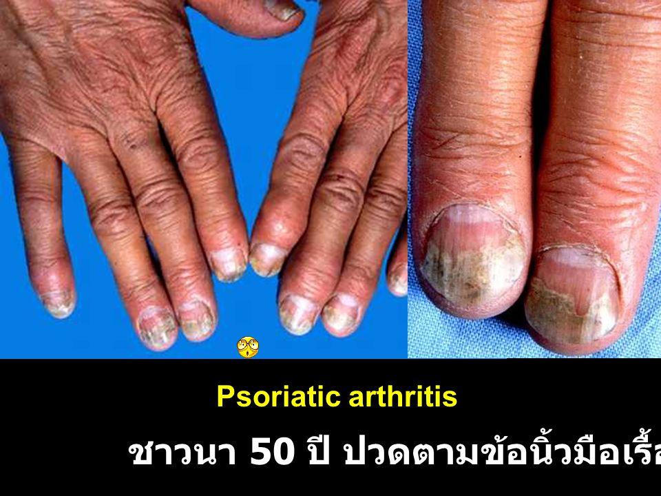 ชาวนา 50 ปี ปวดตามข้อนิ้วมือเรื้อรัง 3 ปี Psoriatic arthritis
