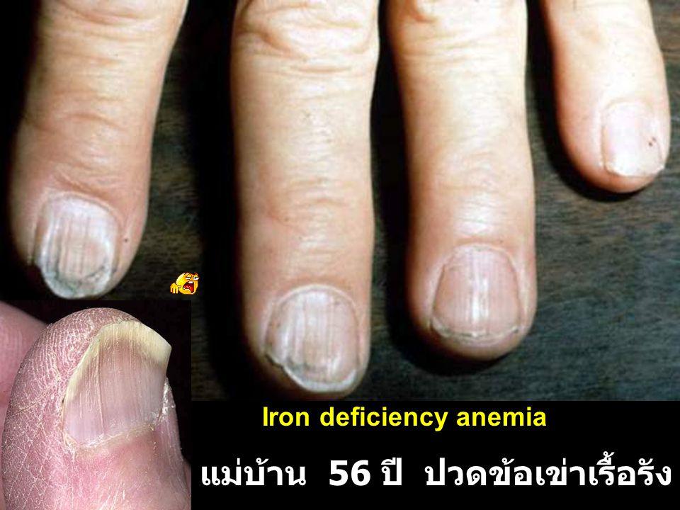 แม่บ้าน 56 ปี ปวดข้อเข่าเรื้อรัง 4-5 ปี อ่อนเพลีย Iron deficiency anemia
