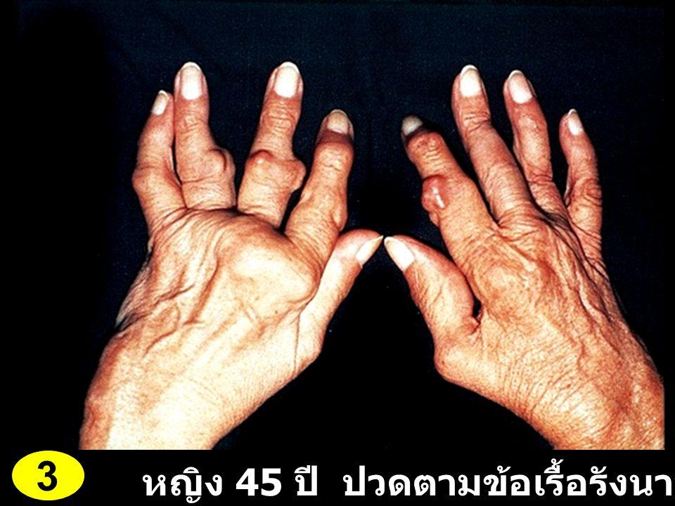 หญิง 45 ปี ปวดตามข้อเรื้อรังนาน 12 ปี 3