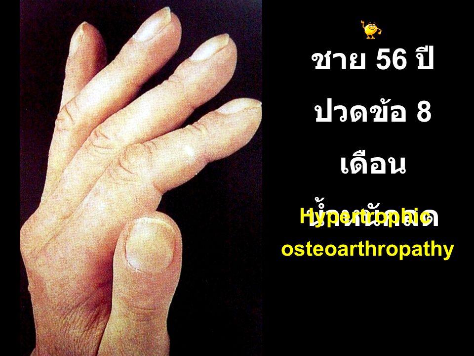 ชาย 56 ปี ปวดข้อ 8 เดือน น้ำหนักลด Hypertrophic osteoarthropathy