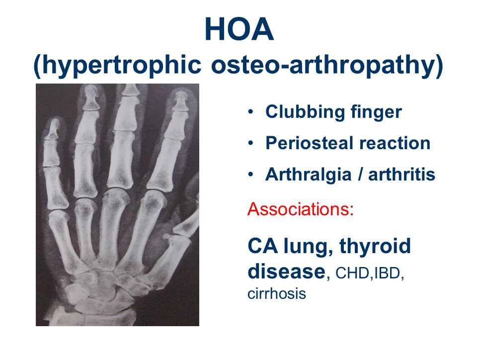 HOA (hypertrophic osteo-arthropathy) Clubbing finger Periosteal reaction Arthralgia / arthritis Associations: CA lung, thyroid disease, CHD,IBD, cirrhosis