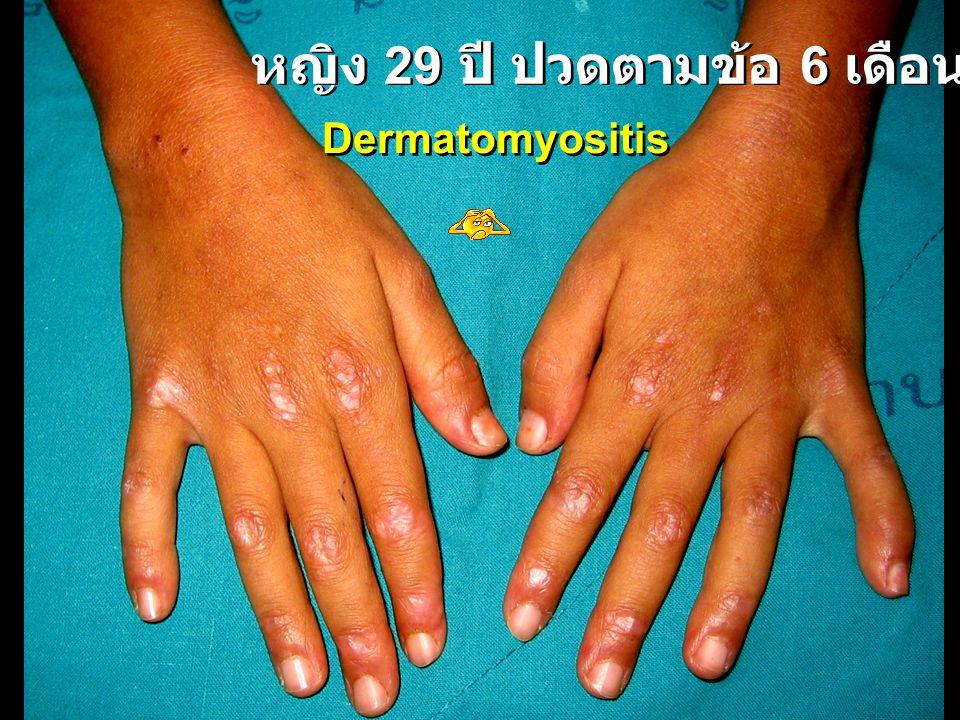 หญิง 29 ปี ปวดตามข้อ 6 เดือน Dermatomyositis