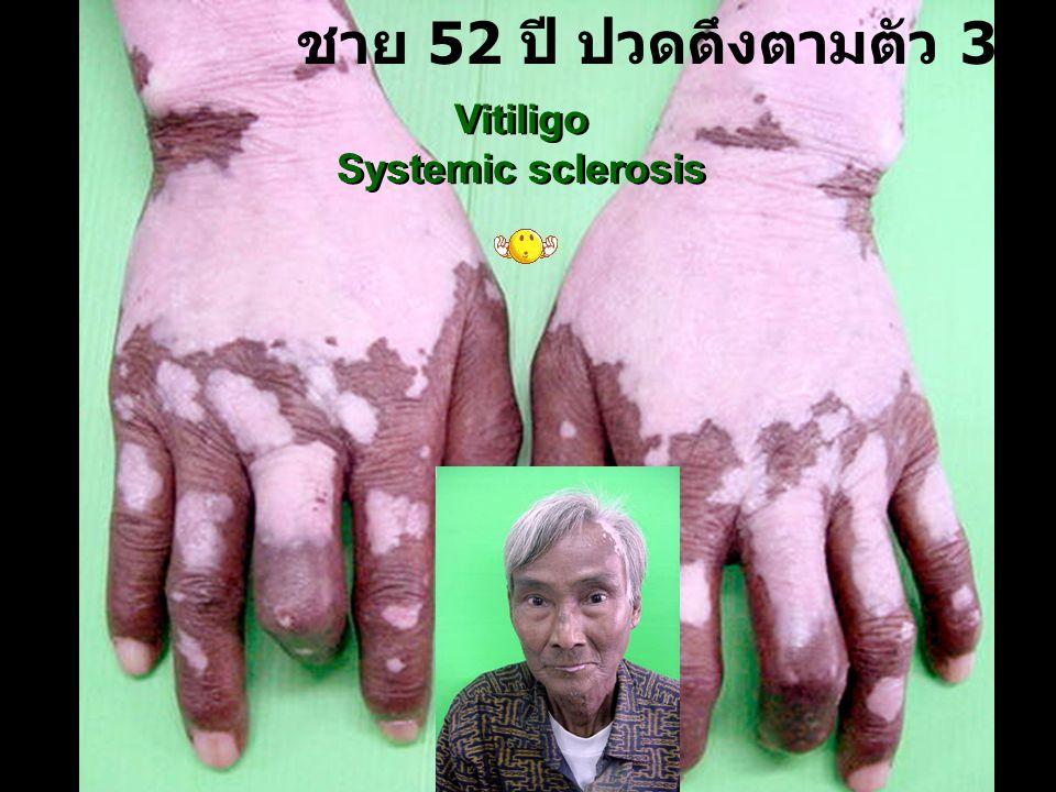 ชาย 52 ปี ปวดตึงตามตัว 3 ปี Vitiligo Systemic sclerosis Vitiligo Systemic sclerosis