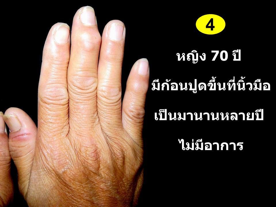 หญิง 70 ปี มีก้อนปูดขึ้นที่นิ้วมือ เป็นมานานหลายปี ไม่มีอาการ 4