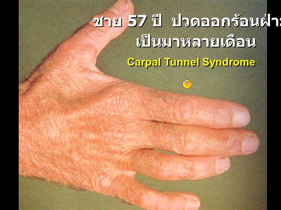 ชาย 57 ปี ปวดออกร้อนฝ่ามือ เป็นมาหลายเดือน ชาย 57 ปี ปวดออกร้อนฝ่ามือ เป็นมาหลายเดือน Carpal Tunnel Syndrome