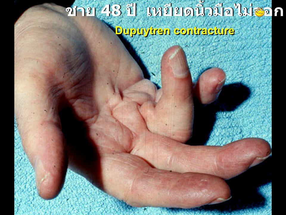 ชาย 48 ปี เหยียดนิ้วมือไม่ออก Dupuytren contracture