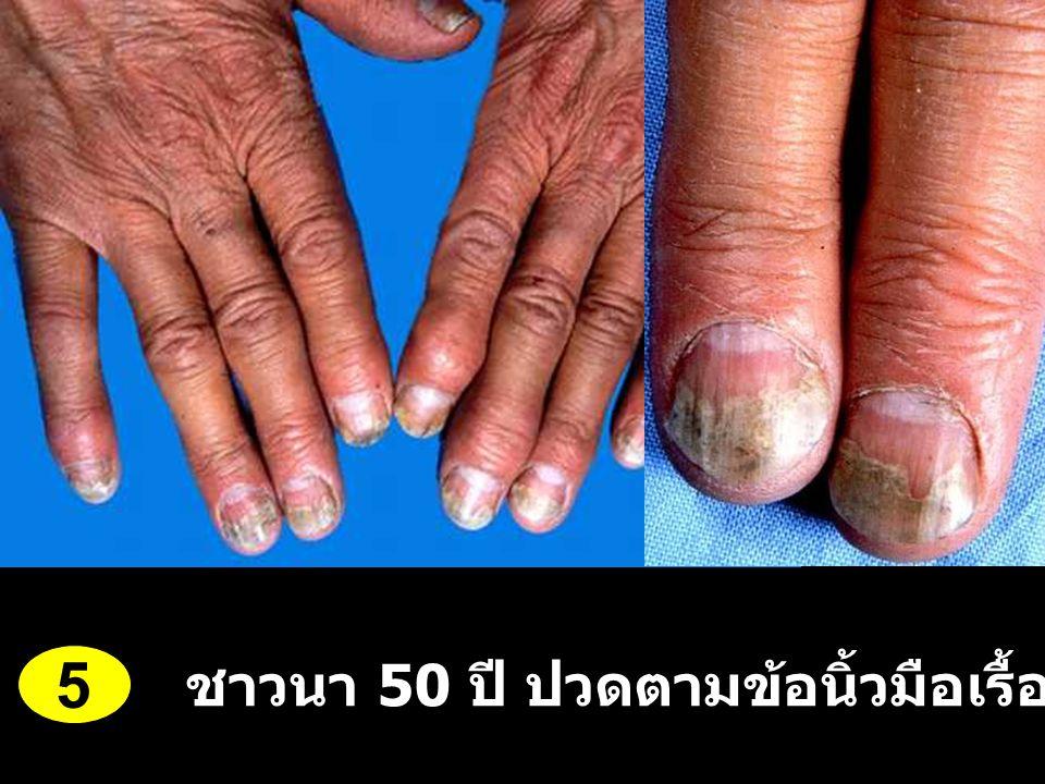 ชาวนา 50 ปี ปวดตามข้อนิ้วมือเรื้อรัง 3 ปี 5
