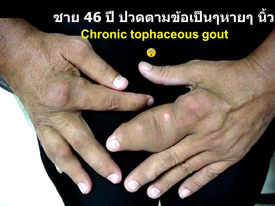 ชาย 46 ปี ปวดตามข้อเป็นๆหายๆ นิ้วมือโตขึ้น Chronic tophaceous gout