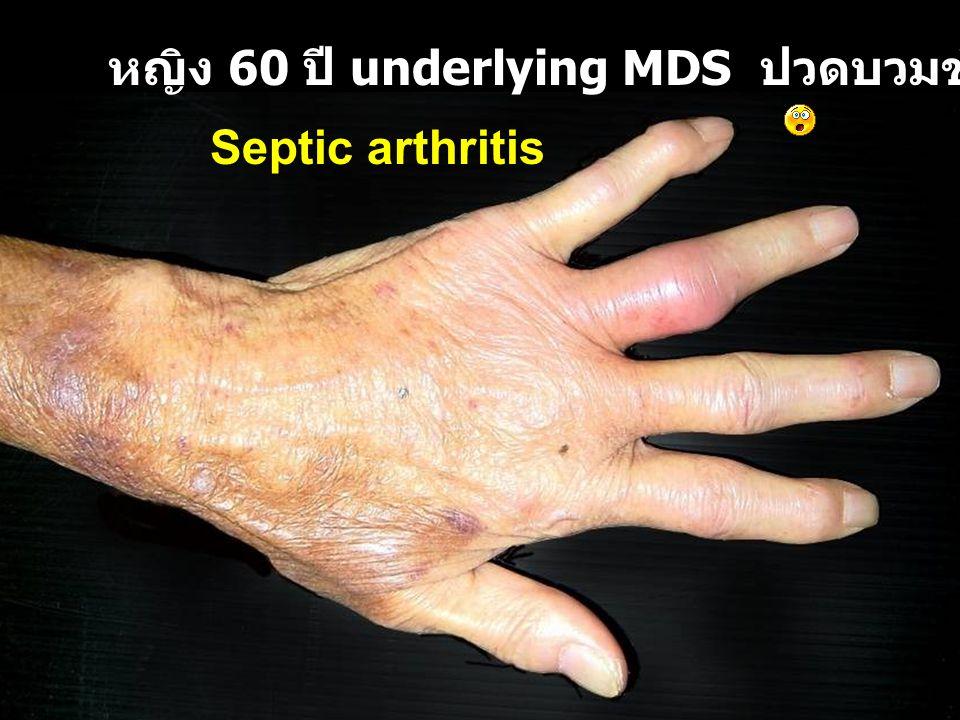 หญิง 60 ปี underlying MDS ปวดบวมข้อนิ้วมือ 1 สัปดาห์ Septic arthritis