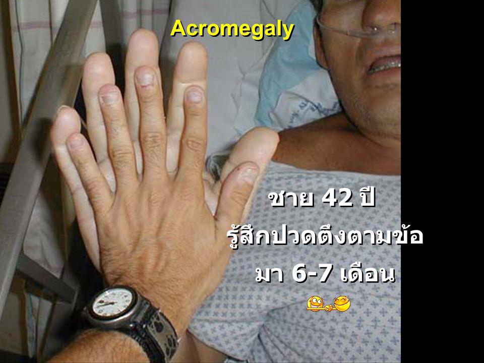 ชาย 42 ปี รู้สึกปวดตึงตามข้อ มา 6-7 เดือน ชาย 42 ปี รู้สึกปวดตึงตามข้อ มา 6-7 เดือน Acromegaly