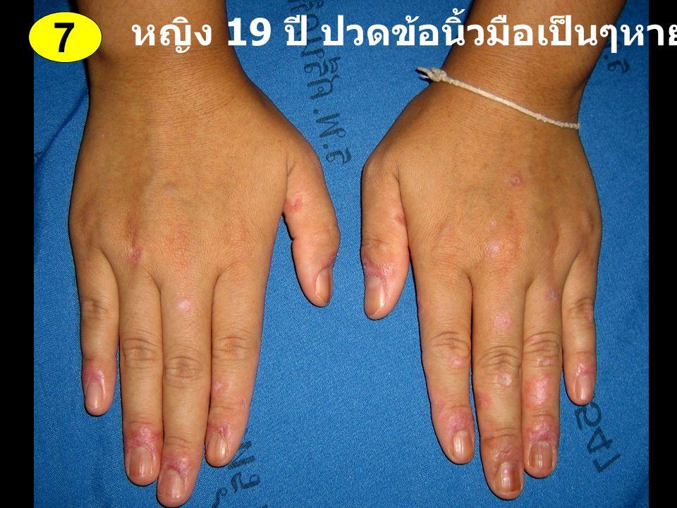 หญิง 19 ปี ปวดข้อนิ้วมือเป็นๆหายๆ 1 ปี 7