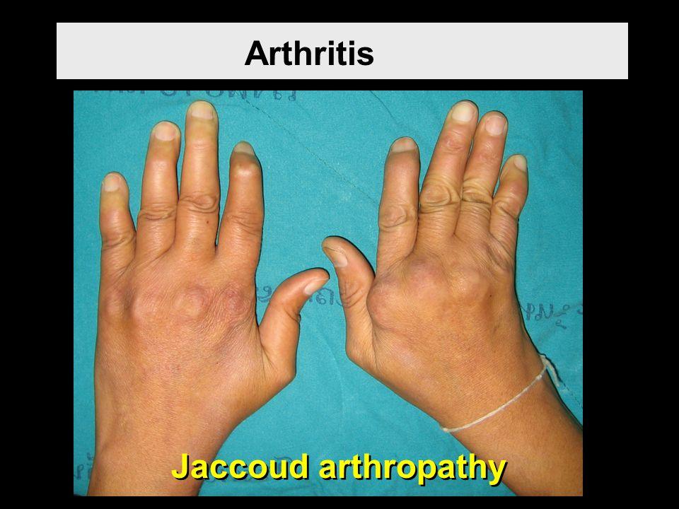 Jaccoud arthropathy