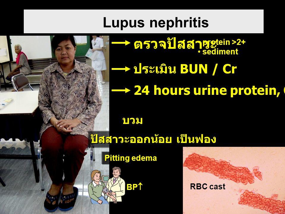 Lupus nephritis Pitting edema ปัสสาวะออกน้อย เป็นฟอง บวม BP  ตรวจปัสสาวะ protein >2+ sediment RBC cast ประเมิน BUN / Cr 24 hours urine protein, Cr