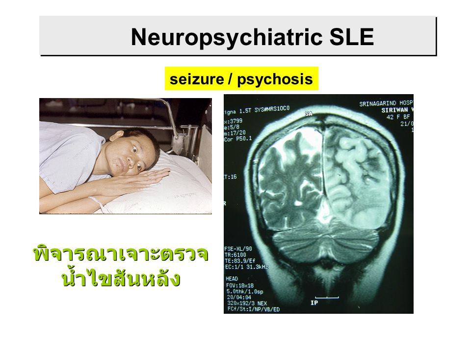 Neuropsychiatric SLE seizure / psychosis พิจารณาเจาะตรวจ น้ำไขสันหลัง พิจารณาเจาะตรวจ น้ำไขสันหลัง