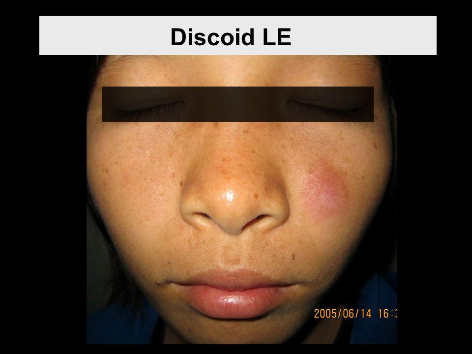 1.ให้การวินิจฉัยโรค SLE ได้โดยใช้อาการทางคลินิกเป็นหลัก 3.