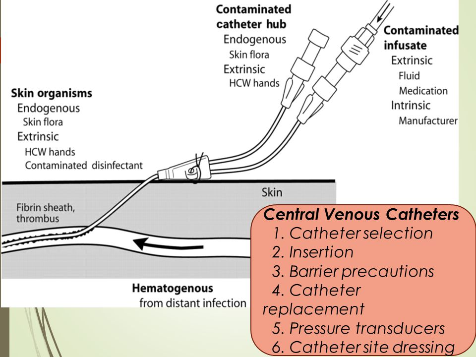 iii.Central Venous Catheters 1. Catheter selection 2.