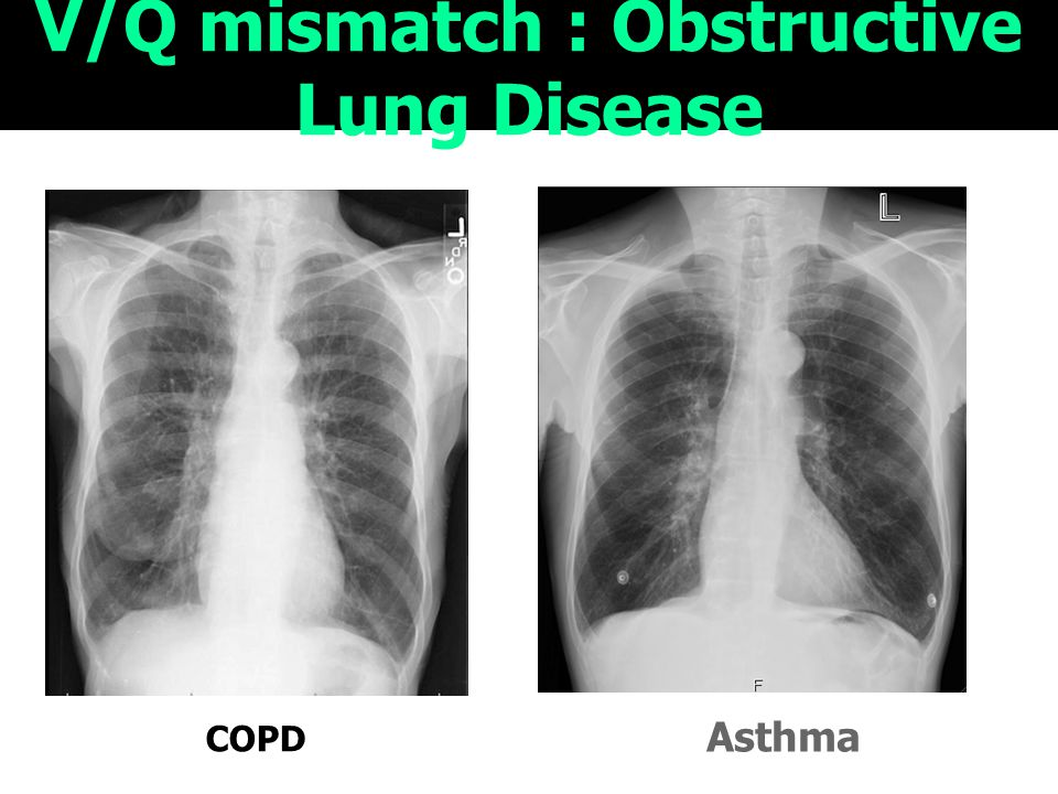 V/Q mismatch : Obstructive Lung Disease COPD Asthma