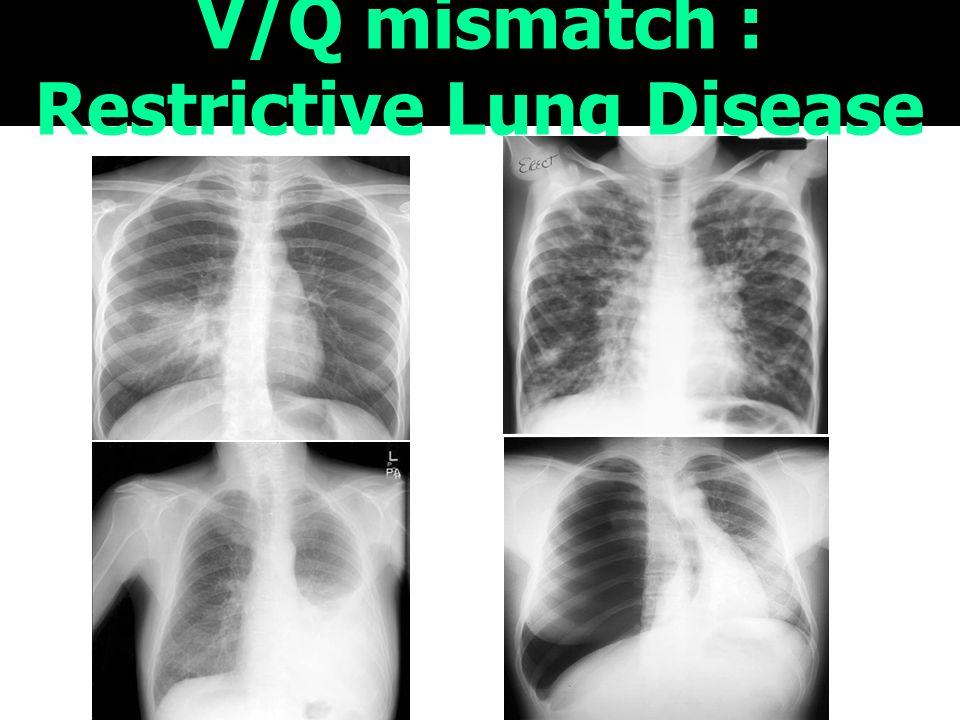 15 V/Q mismatch : Restrictive Lung Disease
