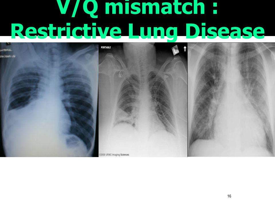 16 V/Q mismatch : Restrictive Lung Disease