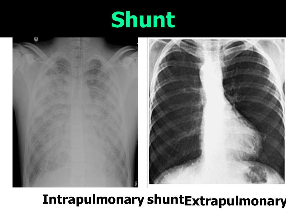 17 Shunt Intrapulmonary shunt Extrapulmonary shunt