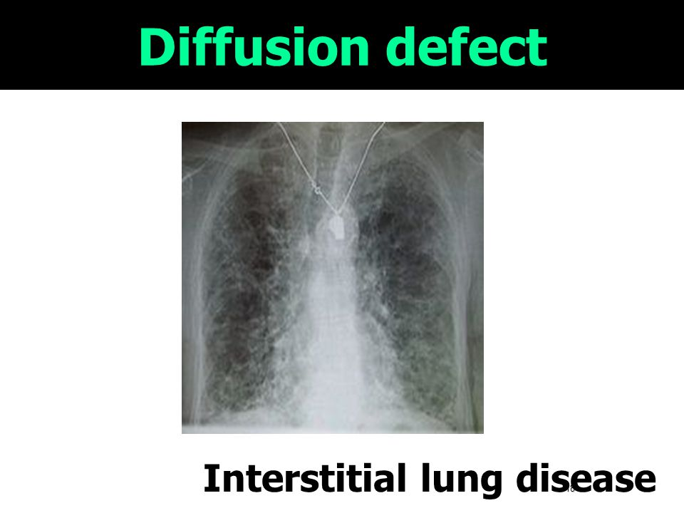 18 Diffusion defect Interstitial lung disease