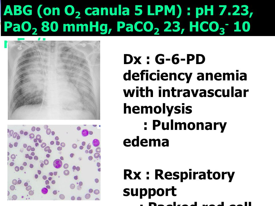 ABG (on O 2 canula 5 LPM) : pH 7.23, PaO 2 80 mmHg, PaCO 2 23, HCO 3 - 10 mEq/L Dx : G-6-PD deficiency anemia with intravascular hemolysis : Pulmonary edema Rx : Respiratory support : Packed red cell : ประเด็นที่ต้องเฝ้า ระวัง ????